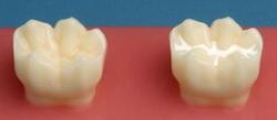Lakowanie zębów stałych