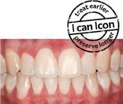 leczenie zębów icon