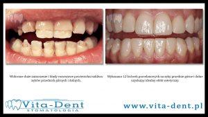 12 licówek porcelanowych zębów górnych i dolnych