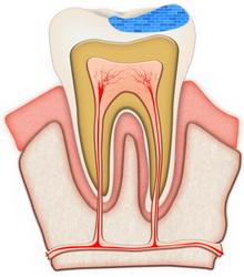 wyleczony ząb