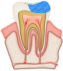 wypełnienie zęba