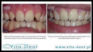 zmiana kształtu zębów wrocław