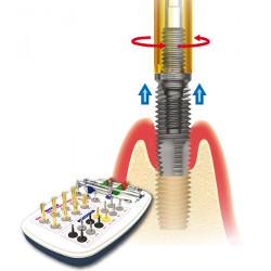 Usuwanie implantów zębowych Wrocław