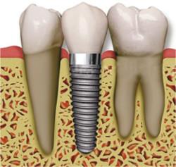 Wizyta kontrolna implantologiczna