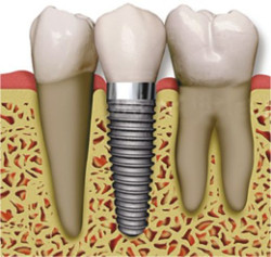 Follow-up after implanting implants
