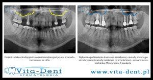 implanty podniesienie zatoki szczękowej