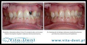 implant po usunięciu zęba Wrocław