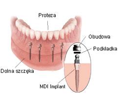 prosthesis on wrocław miniimplants