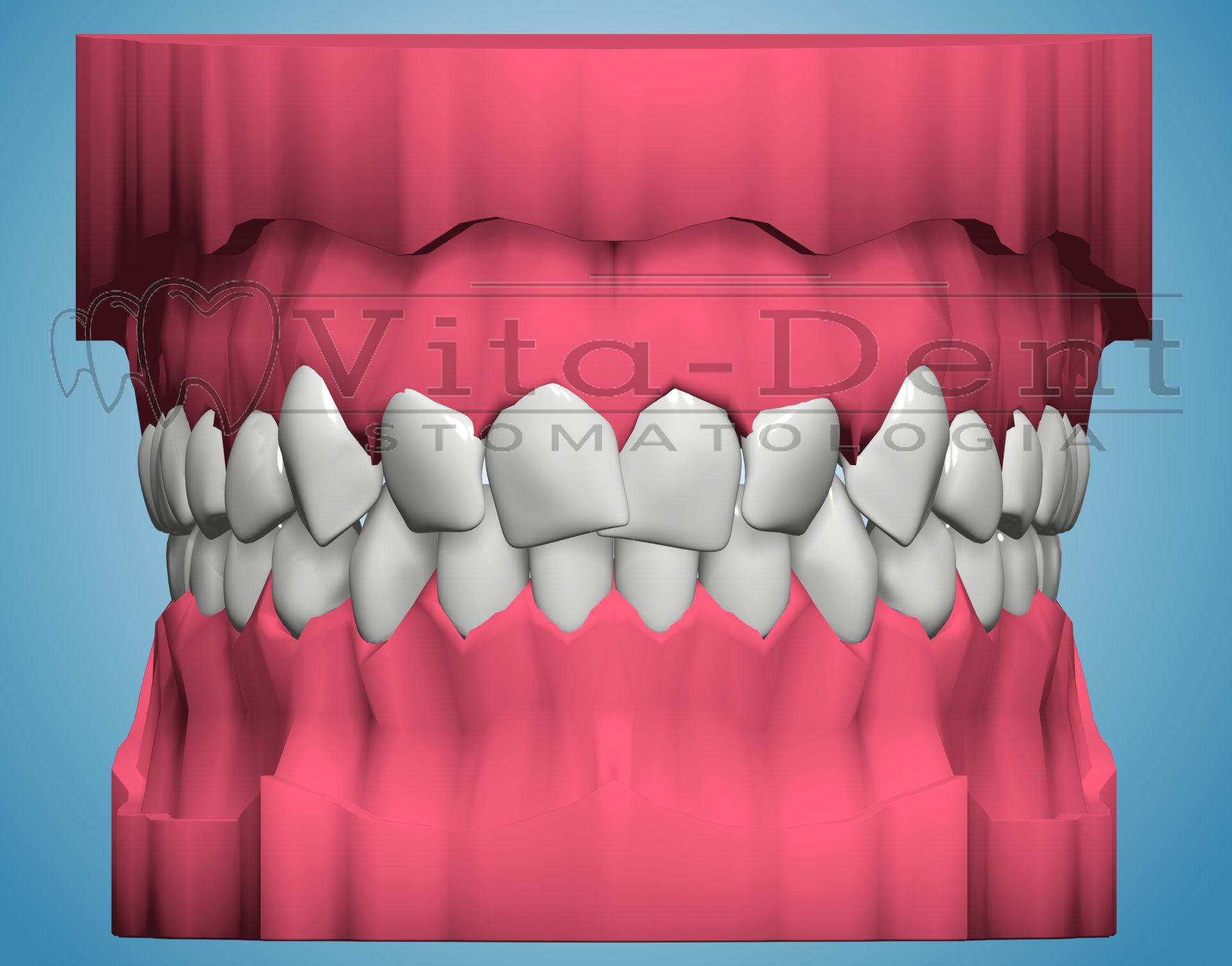 Stłoczenia zębów - leczenie ortodontyczne