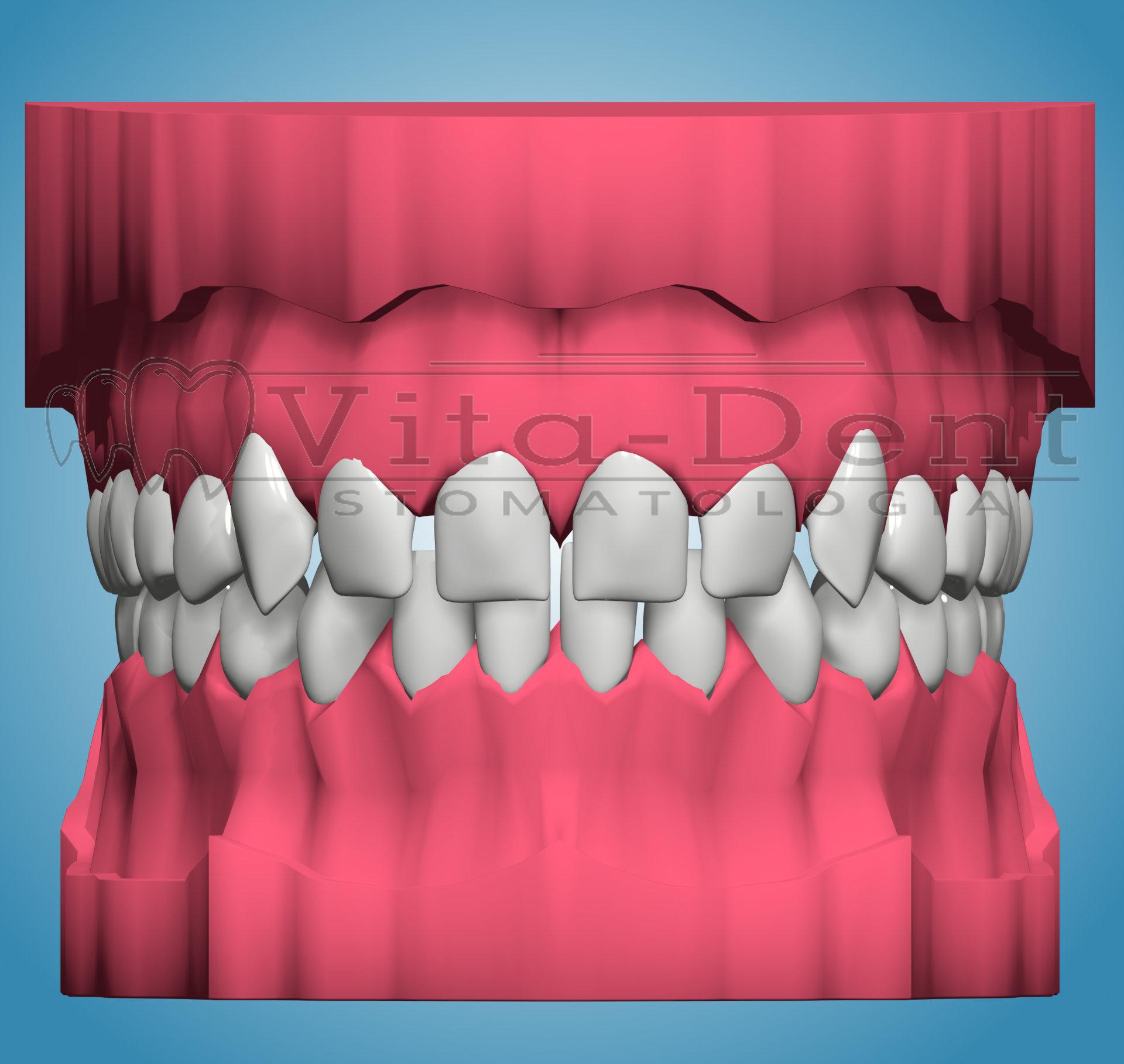 Leczenie ortodontyczne - szparowatość, przestrzenie między zębami