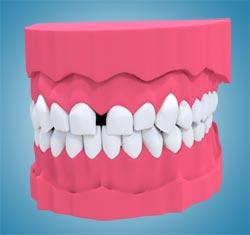 Diastema ortodoncja wrocław