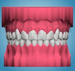 Model ortodontyczny - prawidłowo ustawione zęby