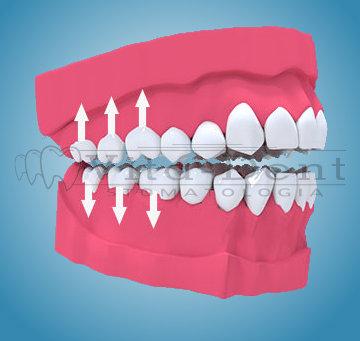 Zgryz otwarty - leczenie ortodontyczne Wrocław