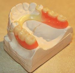 Estetyczna proteza acetalowa