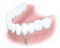 Kronen auf Implantaten