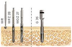 Opis leczenia implantologicznego