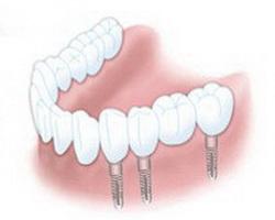 Brücken auf Implantaten