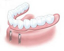 Protezy na implantach