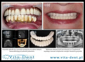 mosty na implantach zębów, most zębów dolnych
