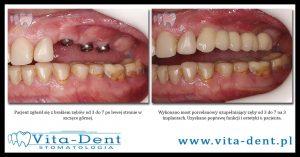 Odbudowa zębów bocznych, most na implantach
